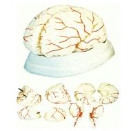 Brain With Arteries (Xc-308)