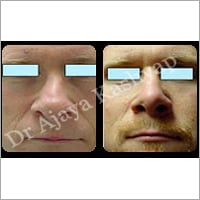 Cosmetic Nose Surgery Services