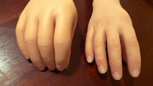 Artificial Hand Prosthetic