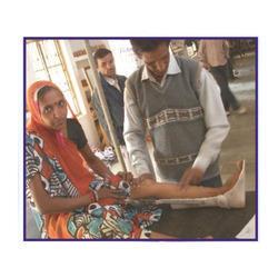 Artificial Knee Ankle Foot Orthosis