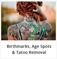 Birthmarks Age Spot And Tattoo Removal Service