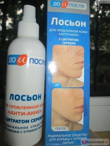 Anti-Acne Lotion For Problem-Prone Skin