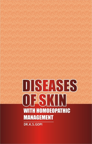Diseases Of Skin With Homoeopathic Management