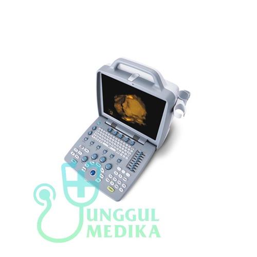 SIUI APOGEE 1200 OMNI Color Doppler Portable Ultrasound Machine