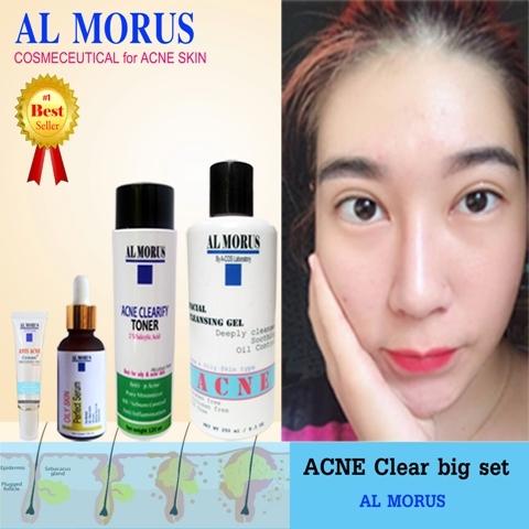 Anti Acne Clear Set