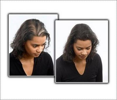 Black Color Ladies Hair Patch