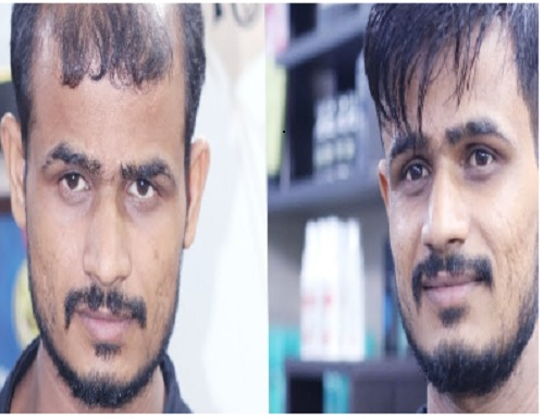 Hair Patching Service Provider