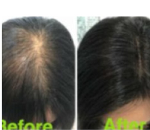 Hair Tapping Service Provider
