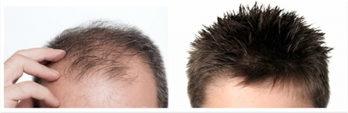 Hair Replacement Services in  Malviya Nagar
