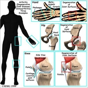 Joint Pain Homeopathy Treatment