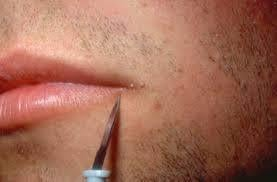 Warts Remover