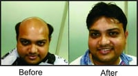 Non Surgical Hair Replacement Service