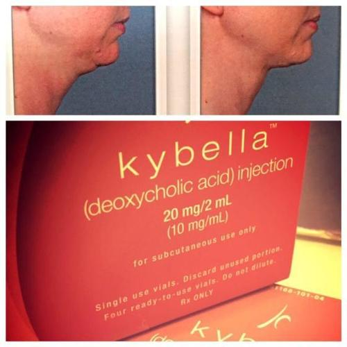 Deoxycholic Acid, Belkyra, Kybella, Celluform Plus