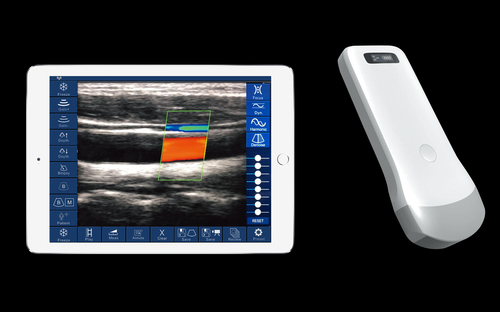 Portable Wireless Handhold Ultrasound Scanner