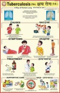 Tuberculosis Charts