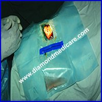 Disposable Sterile Ophthalmic Eye Drapes