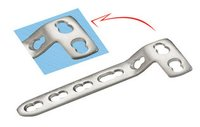 Locking `L` Buttress Plate For 5.0 Mm Screws