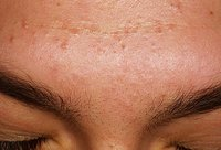 Acne Treatment Medicines