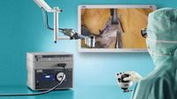Vitom 3d Visualization For Hand And Plastic Surgery