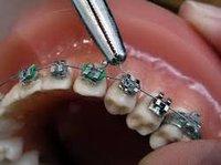 Dental Fixing Bracket