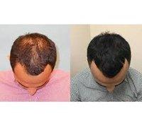PRP Hair Growth