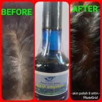 Hair Growth +Oil